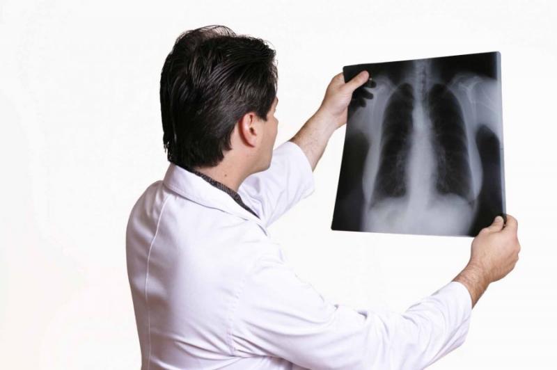 SUS vai adotar remédio para tuberculose que substitui três comprimidos por um