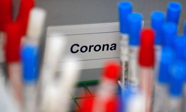 Anvisa discute liberar teste rápido para covid-19 em farmácias